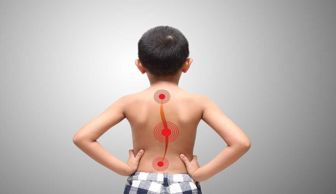 Escoliose: o que é, principais sintomas e como tratar