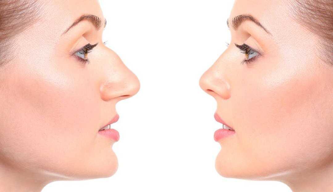Rinoplastia: saiba tudo sobre a famosa cirurgia do nariz