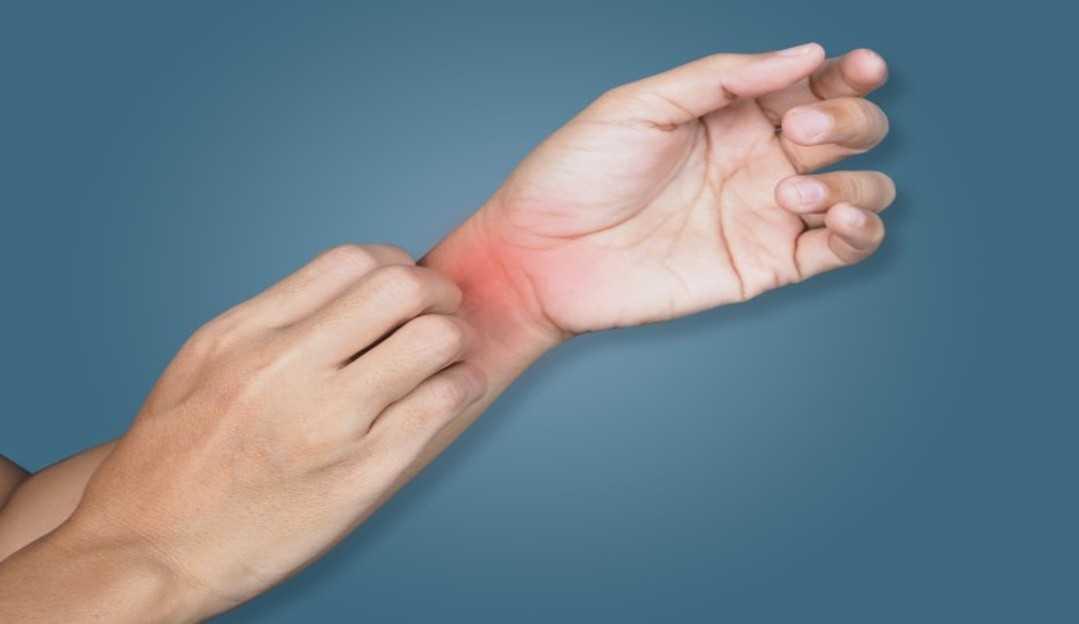 Micose: Saiba o que é e como se prevenir dessa infecção comum no verão