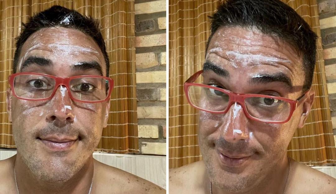 André Marques publica foto com o rosto queimado de sol devido as gravações do 'No Limite'
