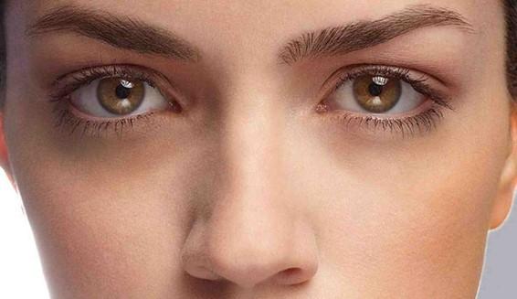Olheiras: Qual o melhor tratamento?