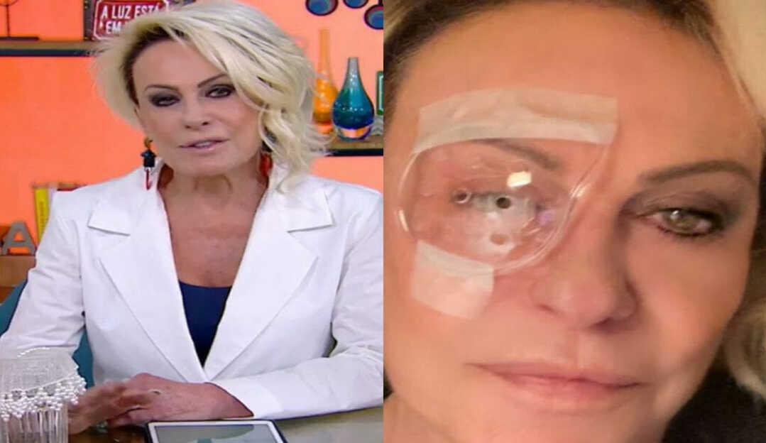 Ana Maria tranquiliza fãs ao postar foto com protetor ocular