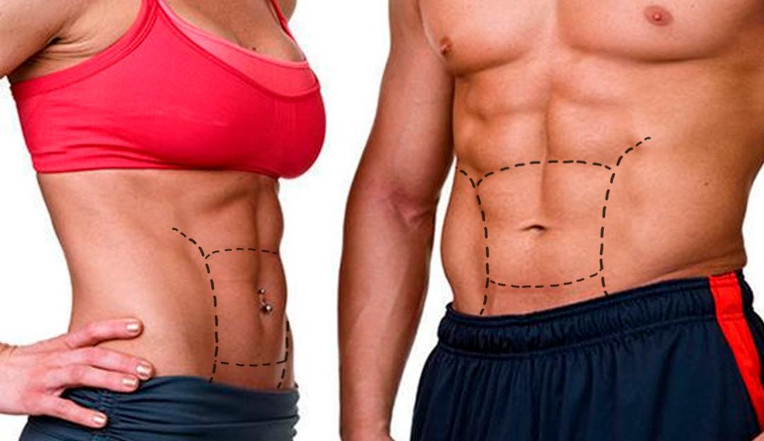 Lipo HD com Renuvion®, definição muscular e pele firme